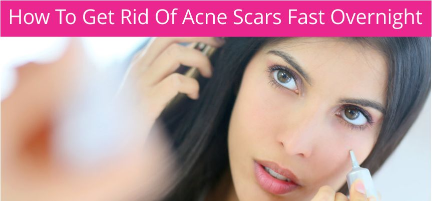 How To Get Rid Of Acne Scars Fast Overnight?