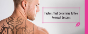 Factors That Determine Tattoo Removal Success