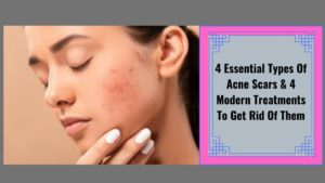 4-Essential-Types-Of-Acne-Scars-4-Modern-Treatments-To-Get-Rid-Of-Them