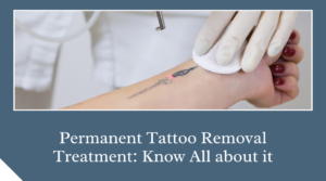 Permanent Tattoo Removal Treatment Know All about it
