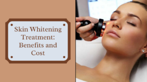 Skin Whitening Treatment Benefits and Cost