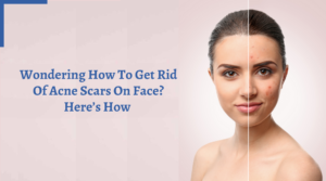 Wondering How To Get Rid Of Acne Scars On Face Here's How